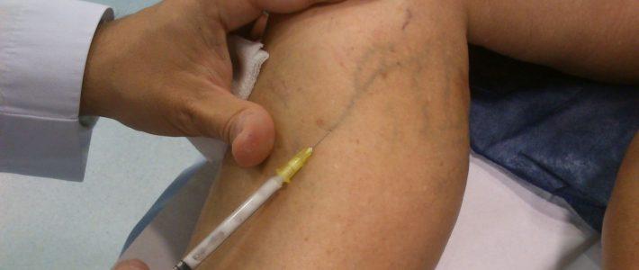 Las varices y ulceras varicosas