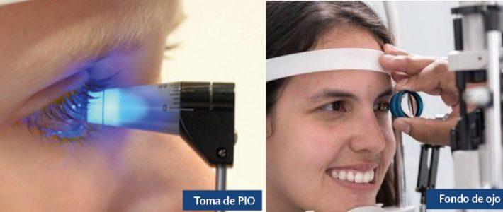 """Glaucoma: """"el ladrón silencioso de la visión"""""""